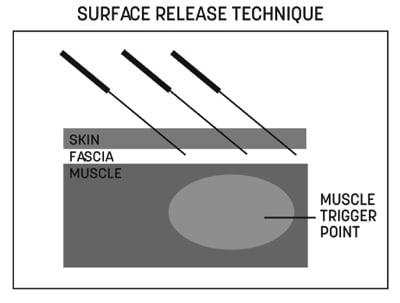 Surface Release Techniques