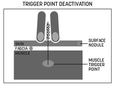 Trigger Point Deactivation